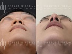 Before and After primary Asian rhinoplasty. The patient underwent rib cartilage harvest, diced cartilage fascia (DCF) for dorsal augmentation, and alar base reduction. #asianrhinoplasty #rhinoplasty #nosejob #beforeandafter #drdonyoo #beverlyhills