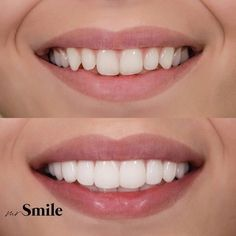 These are No-prep veneers , thin ceramic layers which are used to make all the necessary corrections regarding colour, size , shape or position of teeth.To create them, there is no need for additional preparation of enamel which additionally protects your Teeth Whitening Cost, Natural Teeth Whitening, Smile Dental, Smile Teeth, Dental Videos, Cosmetic Dentistry Procedures, Veneers Teeth, Beautiful Teeth, Teeth Shape