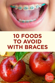Braces ultimately give you a great smile, but there are some sacrifices your taste buds have to make. Take note of these foods to avoid with braces! Braces Food, Braces Tips, Dental Braces, Teeth Braces, Dental Care, After Braces, Getting Braces, Making Jerky, Brace Face