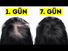 I Went from Thin to Thick Hair in Just a Week – Hair Care Tips Hair Remedies For Growth, Hair Growth Treatment, Home Remedies For Hair, Hair Growth Oil, Onion Juice For Hair, Thicken Hair Naturally, Homemade Hair Treatments, Reverse Hair Loss, Extreme Hair Growth