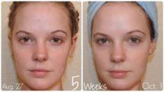 - Cómo cambiar tu apariencia: 7 simples pasos # cambio # Parece que el Cuidado Facial cambia de apar - Anti Aging Skin Care, Natural Skin Care, Skin Growths, Wash Your Face, Facial Care, Flawless Skin, Best Face Products, Clear Skin, Self Improvement