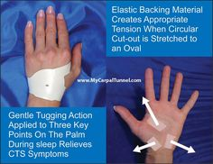 Guillain Barr 233 Syndrome Is An Acute Polyneuropathy A