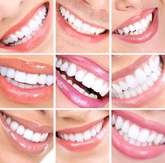 Hollywood FL Porcelain Dental Veneers | South Florida Dental