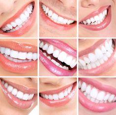 Hollywood FL Porcelain Dental Veneers   South Florida Dental http://www.thedaviedentist.com/home