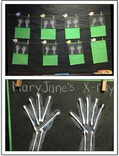 Xrays activities for kids