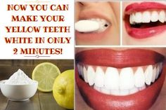 Healthy and white teeth is something that everybody desires. But to achieve this, it can take a lot of effort and time. You can go to the dentists for a whitening procedure, but it will Teeth Whitening System, Natural Teeth Whitening, Instant White Teeth, Make Teeth Whiter, Coconut Oil For Teeth, Acidic Foods, Healthy Teeth, Make It Yourself, How To Make