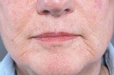 Natural Facelift Techniques To Look Younger With Face Yoga Exercises: Sexy Face Gymnastics Exercises To Treat Laughter Lines And Smile Creases On The Face Home Remedies For Wrinkles, Natural Home Remedies, Face Wrinkles, Prevent Wrinkles, Smokers Face, Face Lift Exercises, Training Exercises, Natural Face Lift, Natural Skin