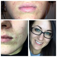 Soothe is an amazing product for sensitive skin. This consultant had a form of acne caused by Perioral Dermatitus a variant of rosacea! These results are just one week of using Rodan + Fields Soothe Regimen! Ask me how to start today at 60dayskincare@gmail.com