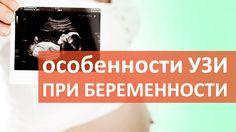 Зачем делать УЗИ плода во время беременности?