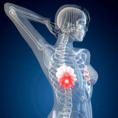 breast cancer #health #breastcancer #cancer #food #people #women