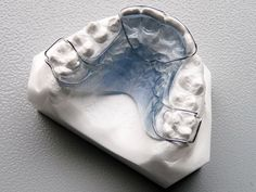 PHase 1 Retainer | Orthodent Lab