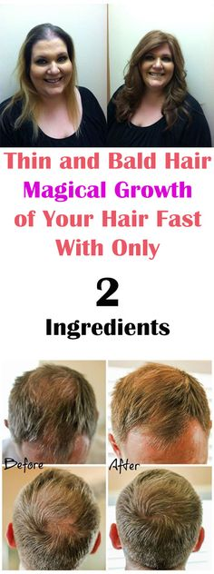 Thin and Bald Hair Magical Growth of Your Hair Fast With Only 2 Ingredients #health #beauty #hair #haircare #beautytips