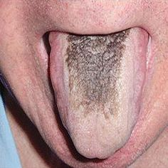 """A hairy tongue – what on earth is that?"""" Well, if this is the question that is on the tip of your tongue then it means you do not suffer from this condition as of now. And you would agree that it might be a good idea to keep your tongue free from hair for all times to come. However, you might want to know how does one end up with hairs on one's tongue and what can one do to avoid that."""