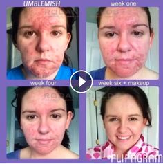 Unblemish made her feel so more  self-confident.