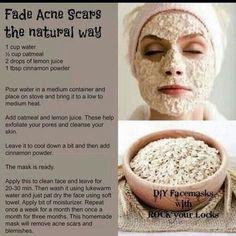 """Fade acne scars in natural way #diy#remedies#diyremedies"""