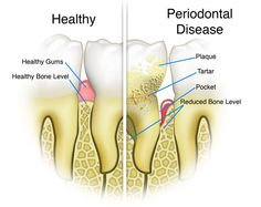 Gum disease is an inflammation of the gum line that can progress to affect the bone that surrounds and supports your teeth. Common types of periodontal disease are chronic periodontitis, Aggressive periodontitis.