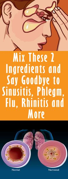 Mix These 2 Ingredients and Say Goodbye to Sinusitis, Phlegm, Flu, Rhinitis and More