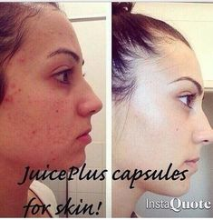 http://www.juiceplus.co.uk/+cp10448 #AcneAndOilySkin