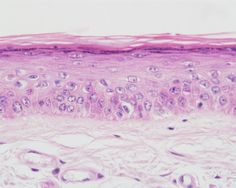 Histology of the Human Lip at 40x magnification integumentary system, thin skin, epidermis, keratinized stratified squamous epithelium
