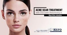Tired of hiding Acne Scars..?  Get your confidence back by experiencing the excellent #AcneScars removal treatment & services only at MayoHairTranslpalnt  # 297,Urban Estate Phase 2, Opp Main Market #JalandharCity | www.mayohairtransplant.com  Book Free Consultation: 0181-4155055  #Menshairloss #hairloss #goingbald #hairtransplant #HairClinic #Cosmeticsurgery #Laser #beard #hair #LaserHairRemoval #hairfreeskin #skinrejuvenation #skincare #skintreatment #antiageing #liposuction #acne… Scar Removal Surgery, Co2 Laser Resurfacing, Hair Clinic, Going Bald, Hair Transplant, Phase 2, Liposuction, Free Hair, Laser Hair Removal