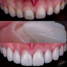 """2,030 Me gusta, 7 comentarios - Dentistry Forum (@dentistry_forum) en Instagram: """"Case from @odcarloslopezm - Un caso realizado bajo el concepto de mínima invasión 10 unidades de…"""""""