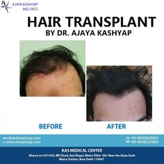 If you want a long term and permanent solution for your baldness, consider hair transplant surgery. EMI Available Pay Easy Monthly Instalments Please call us (+91-9958221983) and inquire (info@besthairtransplantdelhiindia.com) about the Hair Treatment in Delhi, with Dr. Ajaya Kashyap - your Hair Transplant Surgeon in South Delhi, Web: www.besthairtransplantdelhiindia.com #HairTransplant #FUE #FUT #HairLoss #PRP #Beard #Moustaches #Eyelash #Eyebrows #PlasticSurgery #Aesthetics #Hair Eyelashes, Eyebrows, Hair Transplant Surgery, Hair Loss Women, Moustaches, Hair Loss Treatment, Fall Hair, Plastic Surgery, Clinic