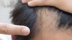 Watch How This Herb Stops Balding Immediately And Restarts Hair Growth Best Hair Mask, Hair Mask For Growth, Anti Ride, Face Yoga, Bald Heads, Makes You Beautiful, Beautiful Days, Hair Loss Remedies, Hairline