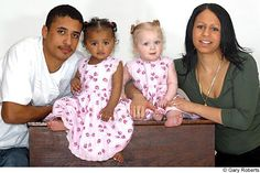 A British couple beat terribly steep odds to produce these twin girls.The amazing conception happened after two eggs were fertilised at the same time in the womb. Both Kylie and her partner Remi Horder, 17, are of mixed race. Their mothers are both white and their fathers are black. According to the Multiple Births Foundation, baby Kian must have inherited the black genes from both sides of the family, whilst Remee inherited the white ones.