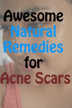 Awesome Natural Remedies for Acne Scars | Natural Alternative Remedy