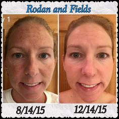 """Margot Kempton Bifulco, my fellow consultant, shares:  I am so happy and excited to share my sister Melissa's personal results using Rodan and Fields Unblemish and Reverse regimens!  My sister says, """" I feel better about my skin than I ever have before! Thank you Rodan and Fields!"""""""
