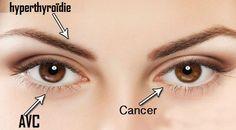 8 choses que vos yeux peuvent vous dire sur votre santé