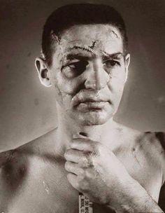 FACE: Healed but visible scar on a cheek / Давно зажившие шрамы на щеке