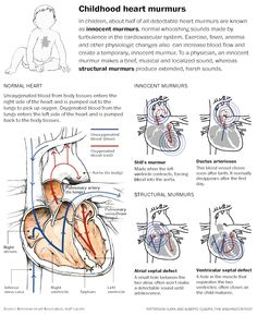 Explanatory graphic describing several birth defects that cause heart murmurs. In children, about half of all detectable heart murmurs are known as innocent murmurs, normal whooshing sounds made by turbulence in the cardiovascular system. Ink and watercolor illustrations with vector diagrams created in Adobe Illustrator.  Interactive can be found at: http://wapo.st/12DPnRm