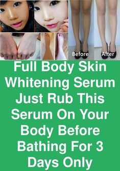 Full Body Skin Whitening Serum - Just Rub this Serum on your body Before Bathing for 3 days only Sometime, Dark is not your natural skin color. In fact, your skin color changes due to sunlight irritation so that by ultraviolet rays that can damage your skin. And skin becomes dark. Apart from sun exposure, there are many other factors which make skin appear dark. But there is a one shot solution for this problem. It's …