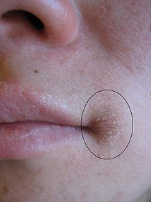 Angular cheilitis - Wikipedia, the free encyclopedia