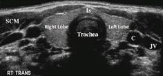 normal thyroid ultrasound image