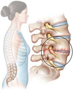 lumbar herniated disc