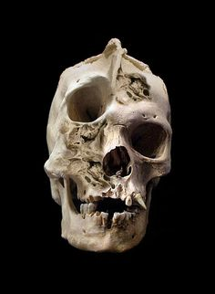 Human skull with deformity