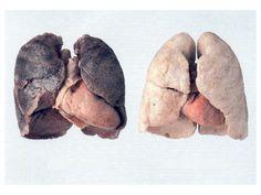 4 Productos que purifican los pulmones de un fumador