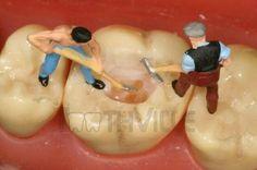 Why is this dentist not wearing a shirt? All team members should always wear a proper uniform! Dentist Jokes, Dental Humor, Dental Hygiene, Tooth Tattoo, Bone Grafting, Cute Tooth, Glass Showcase, Human Teeth, Dental Procedures