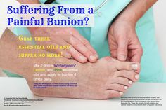 1000+ images about Essential Oils for Bunion on Pinterest ...