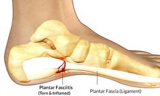 What is Plantar Fasciitis?