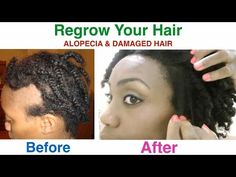 I cured my Alopecia Areata Damaged Hair and I share my tips with you on how I did this in this video. I used my Shea Butter Mixture as well as my Black Soa. Black Hair Growth, Hair Mask For Growth, Black Hair Care, Male Pattern Baldness, Regrow Hair, Hair Loss Remedies, Healthy Hair Growth, Hair Regrowth, Places