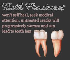 Tooth Fractures won't selfheal, seek medical attention. Untreated cracks will progressively worsen and can lead to tooth loss.