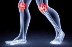 cha-que-trata-artrose-naturalmente