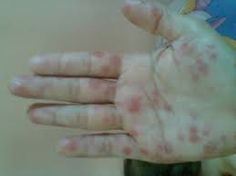 Obat Alergi Alami: Obat Alergi Alami