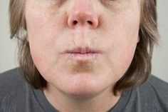 Lines around the upper lip are most commonly caused by repeated facial expressions like smiling, laughing and talking, and they are quite common in both. Lip Wrinkles, Prevent Wrinkles, Oils For Scars, Oils For Skin, Smokers Lines, Anti Aging, Wrinkle Remedies, How To Line Lips, Lip Mask