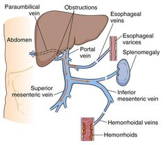 Portal Hypertension: Increased pressure in the portal vein caused by an obstruction of the flow of blood through the liver. Portal hypertension is found in diseases such as cirrhosis, in which it is responsible for ascites, splenomegaly, and the formation of varices.