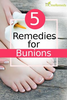 5 Natural Cure For Bunions