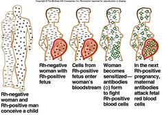 #Rh factor in mother and fetus: a visual explanation of this concept #nursingstudents #nursecollab